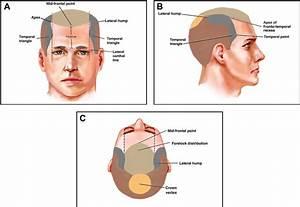 Artery Diagram Scalp