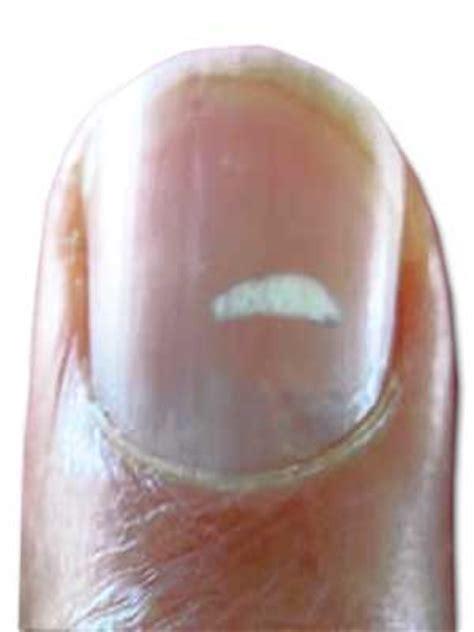 White Spots On Nail Beds by Leukonychia Causes Symptoms Leukonychia Treatment For