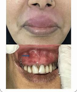 Labial Cellulitis Associated With A Periapical Abscess