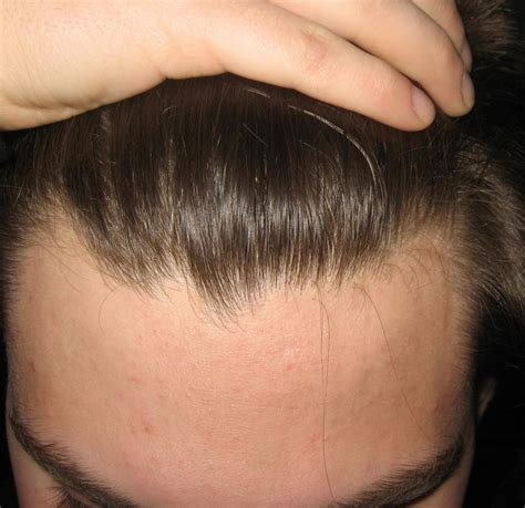 When Hair Transplant May Not be a Good Idea - New Youth