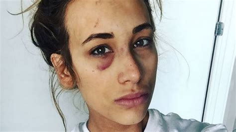 Carmella Recovering From Black Eye | WrestlingNewsSource.Com