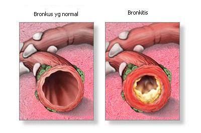 infeksi  bronkus disebabkan oleh infeksi virus