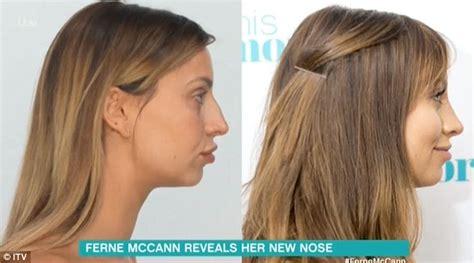 chris owen ear surgery ferne mccann plastic surgery before and after photos