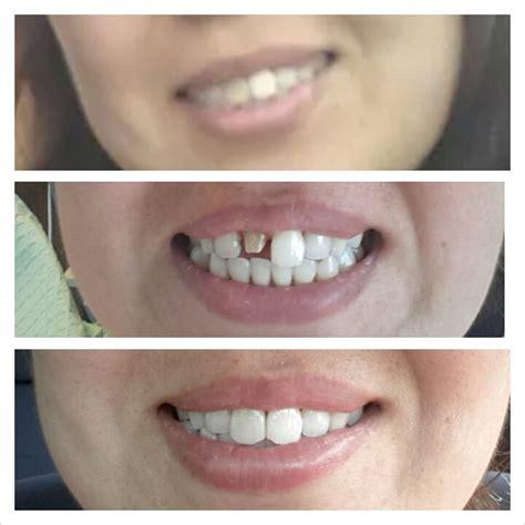 roca dental general dentistry arlington va reviews