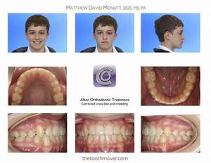 The gallery for --> Invisalign Before And After Crossbite