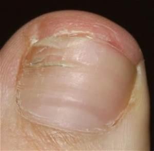Грибок ногтя хлорка