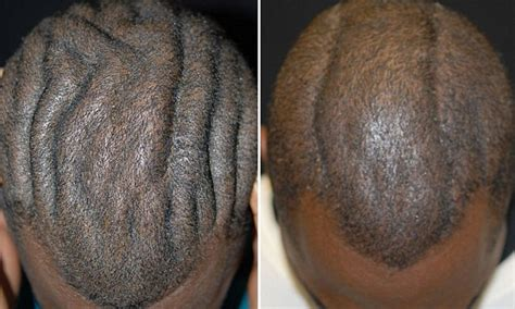 perfect man  brainy scalp   life