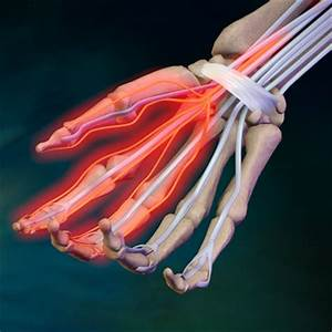 Деформирующий артроз левого тазобедренного сустава 2 степени лечение