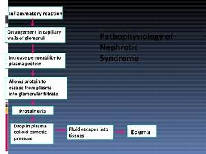 3. Nephrotic Syndrome