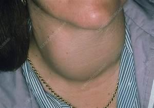 Swelling Of Neck Due To Thyrotoxic Goitre - Stock Image M165  0153