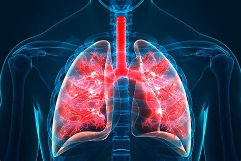step closer  understanding idiopathic pulmonary