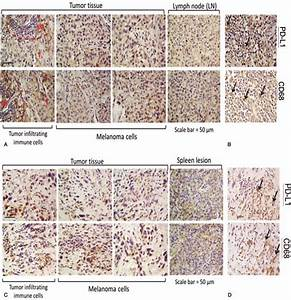 Immunohistochemical Staining Of The Neck  Lymph Node  And