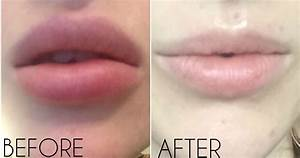 Lip Filler Removal Guide  From How Hyaluronidase Works  To