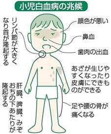 小児 白血病 初期 症状
