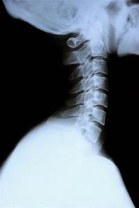 Cervical And Thoracic Spine