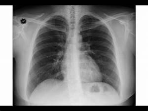 Chest x-ray - Asbestosis - Pleural calcifications - Round atelectasis - YouTube  Pneumonia Asbestos