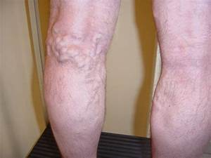 Varice picioare tratament