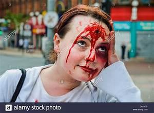 Pin Gunshot-wound-to-head on Pinterest