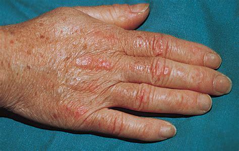 amyopathic dermatomyositis  review   italian group