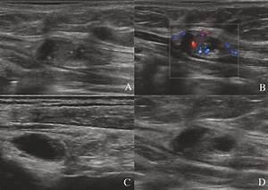 Metastatic Lymph Nodes At Gray