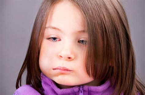 What Does Mumps Look Like in Children