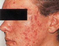 test wie schwer ist deine akne aknetyp herausfinden