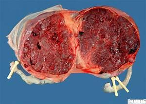 Dichorionic Diamniotic Gemellar Placenta