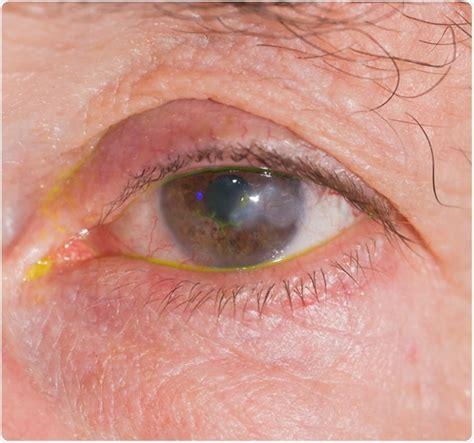 keratitis diagnosed