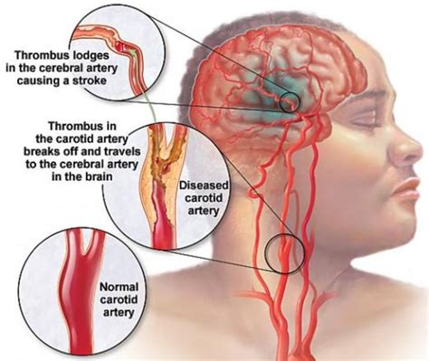 chelation therapy cures stroke blood clot