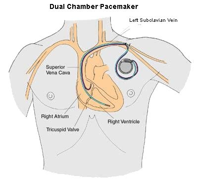 pacemaker chambre pacemaker