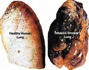 Straight talk about tobacco | girlshealth.gov