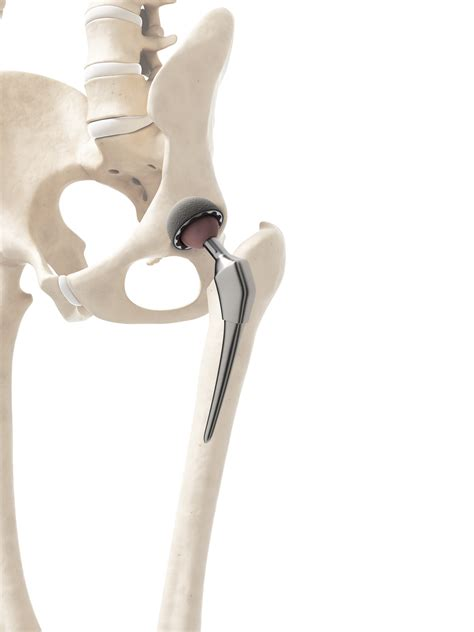 Minimally invasive anterior hip arthroplasty (Hueter) | Dr