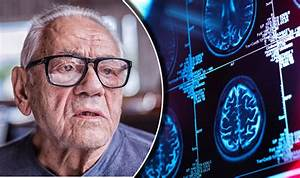 Alzheimer's disease cure? New method may lead to more ...