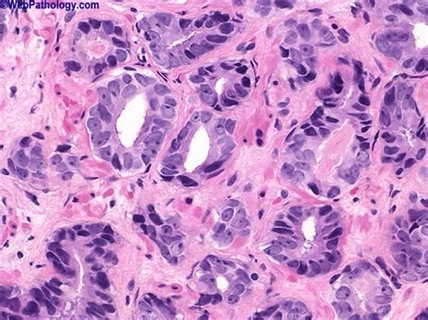 Neuroendocrine Cancer gleason pattern  humpathcom human pathology 504 x 378 · jpeg