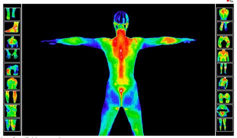 thermography body sample radiant injuries interactive conditions website gilbert cancer mammography imaging
