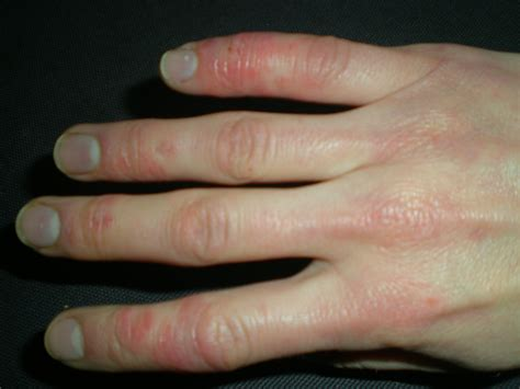 Fileraynauds With Skin Lesions