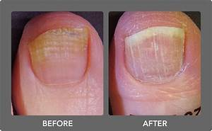 Toenail Fungus Laser Treatment