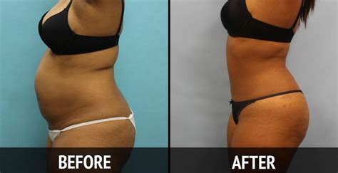 contour light body sculpting before and after smartlipo livelight clinic