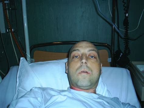 moi en traitement chimio en chambre st 233 rile durant 1 mois