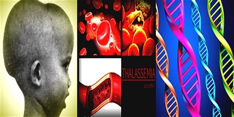 It includes alpha thalassemia and beta thalassemia. Difference between Thalassemia Major and Minor: A Genetic Disorder - ResearchPedia.Info
