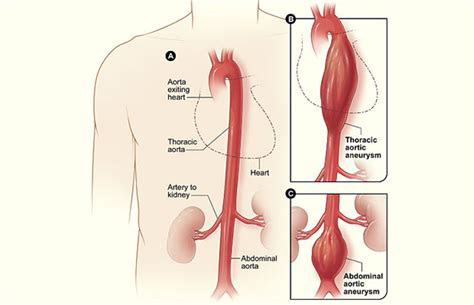 What Is An Aortic Aneurysm?  British Heart Foundation