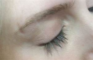 Anti Eyebrow Scar (pictures)? | Yahoo Answers