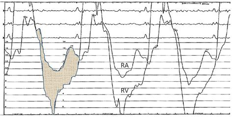 heart catheterisation indications
