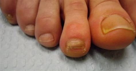dont polish ugly toenails  discolored thick cracked