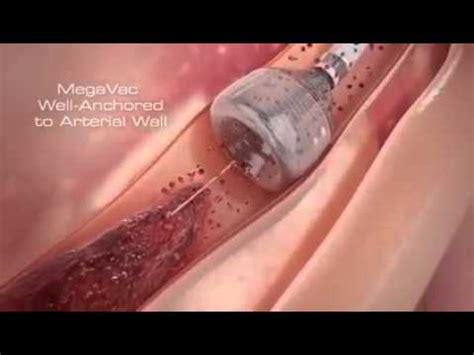 latest technology  blood clot removal ob news youtube