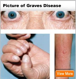 Graves' Disease Treatment, Diagnosis, Symptoms, Cause. Road Us Signs Of Stroke. Incomplete Signs. Checklists Signs. Cortisol Signs. Female Smoker Signs. Evacuation Route Signs Of Stroke. Main Signs Of Stroke. Public Signs