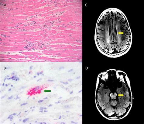 severe human parechovirus type  myocarditis
