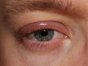 pijn onder ooglid