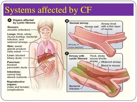 fibrosis cystic foundation affected systems cf infections chronic nasal bronchiectasis