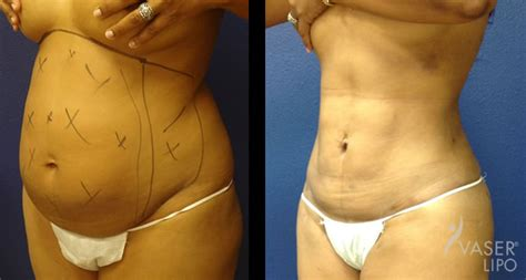 Vaser Liposuction Tampa, Wesley Chapel  Bella Med Spa. Central Air Conditioner Replacement Cost. How To Start A Web Hosting Company. Course Project Management Online. Police License Plate Scanners. Treatment Of Mesothelioma Plumbers St Louis. Operations Management Degree. Dentist In Riverdale Ga On Line Business Card. College Of Dupage Nursing Program